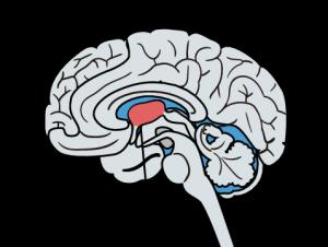 統合失調症の症状の説明がしやすい原因仮説をご紹介します。